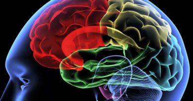different brains understanding neurodiversity